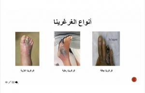 كلية الطب بالقنفذة تقيم ندوة توعوية بعنوان (القدم السكرية)