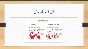 كلية الطب بالقنفذة تقيم ندوة افتراضية علمية طبية عن فقر الدم المنجلي